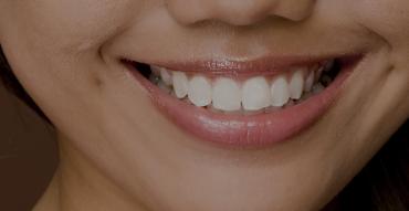 mini dental implants Fairfax, VA